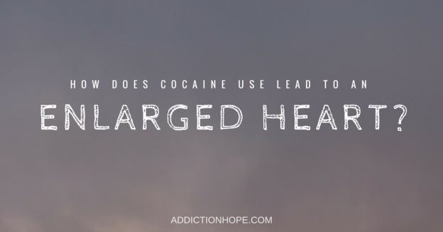 Enlarged Heart Causes Cocaine Use - Addiction Hope