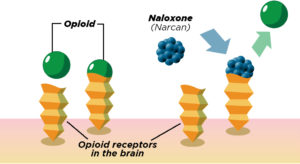 How Naloxone Works
